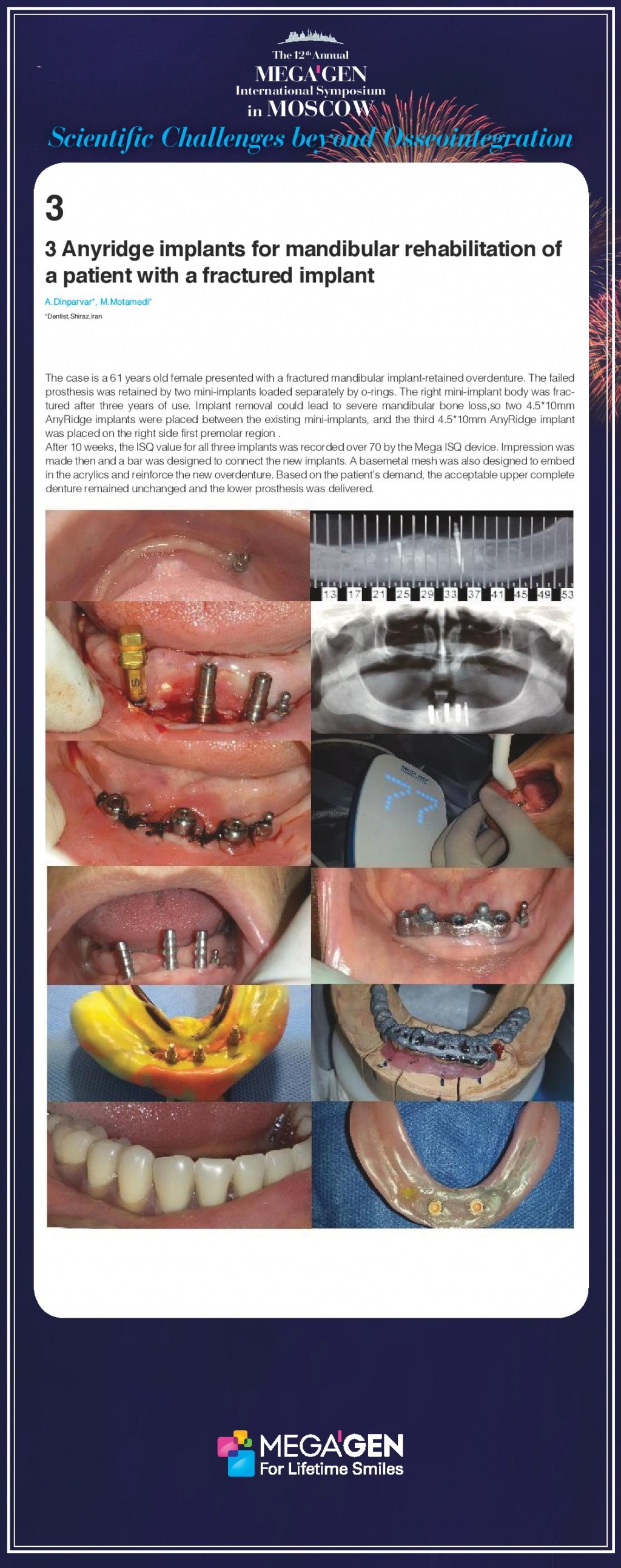 Anyridge implants for mandibular rehabilitation of a patient with a fractured implant