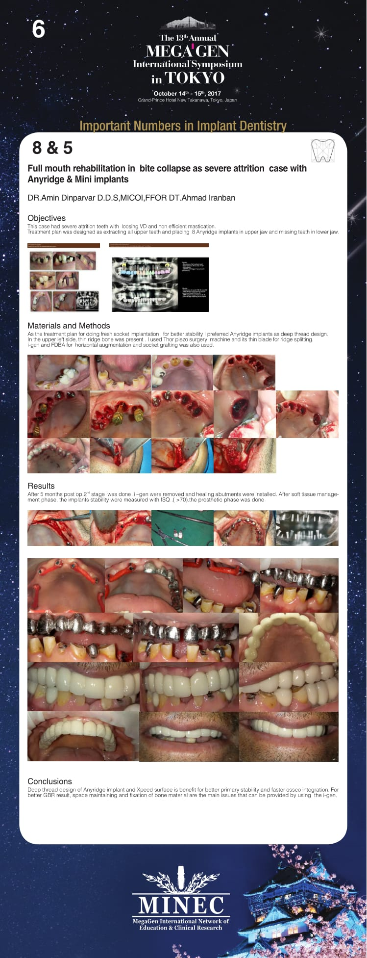 Full mouth rehabilitation in bite collapse as severe attrition case with Anyridge & Mini implants