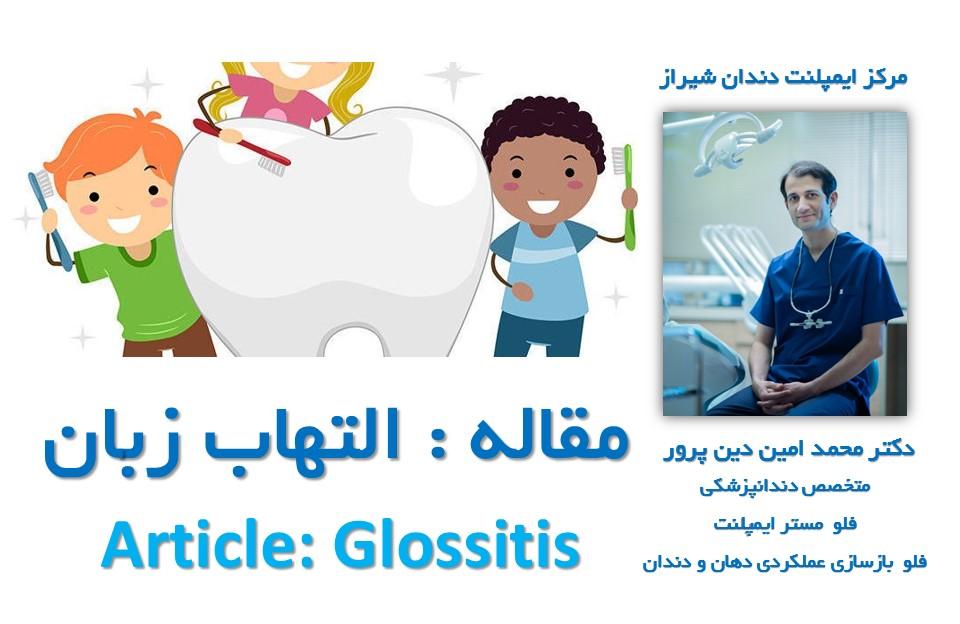 مقاله التهاب زبان : مرکز ایمپلنت و زیبایی دندان شیراز دکتر محمد امین دین پرور