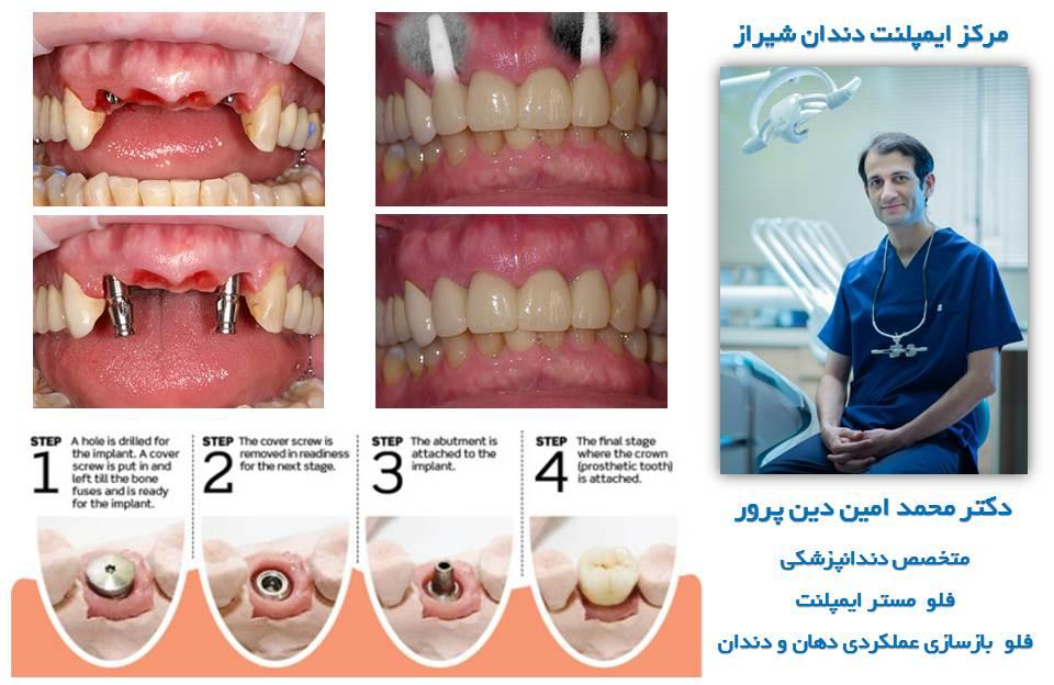 مرکز ایمپلنت دندان شیراز