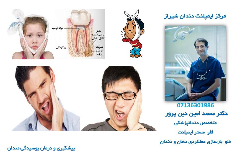 مرکز ایمپلنت و زیبایی دندان دکتر محمد امین دین پرور : پوسیدگی دندان