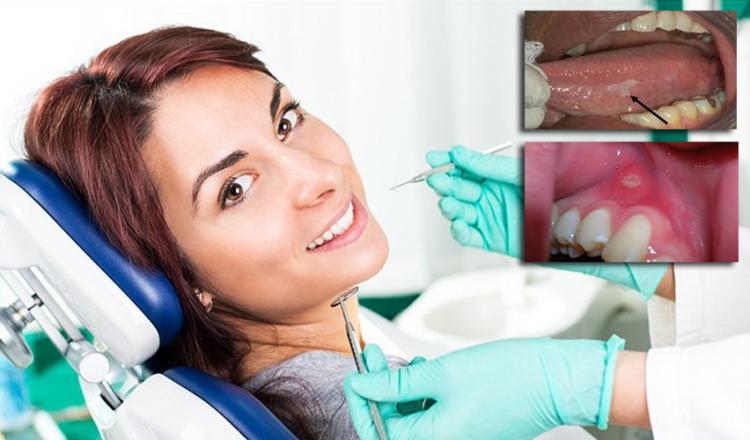 علائم سرطان دهان از چشمتان جا نمانند