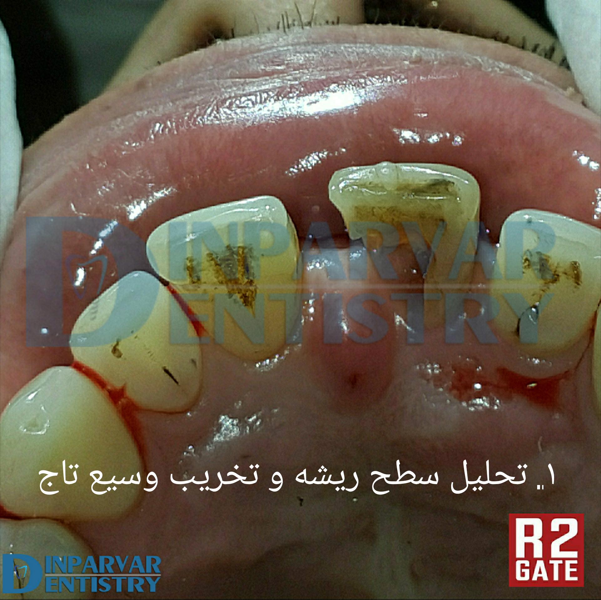 درمان ایمپلنت یکروزه همزمان با خارج کردن دندان قدامی فک بالا