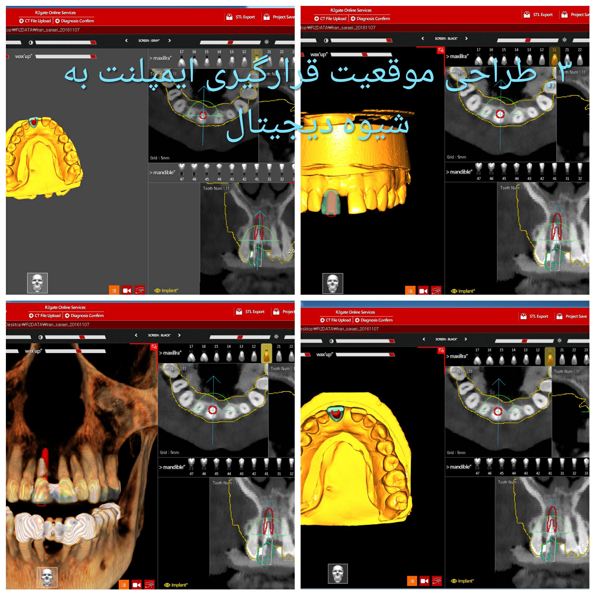 تصویر سه : درمان ایمپلنت یکروزه همزمان با خارج کردن دندان قدامی فک بالا