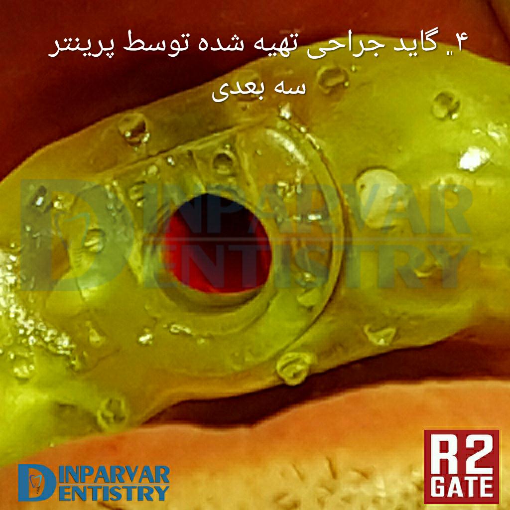 تصویر چهار : درمان ایمپلنت یکروزه همزمان با خارج کردن دندان قدامی فک بالا