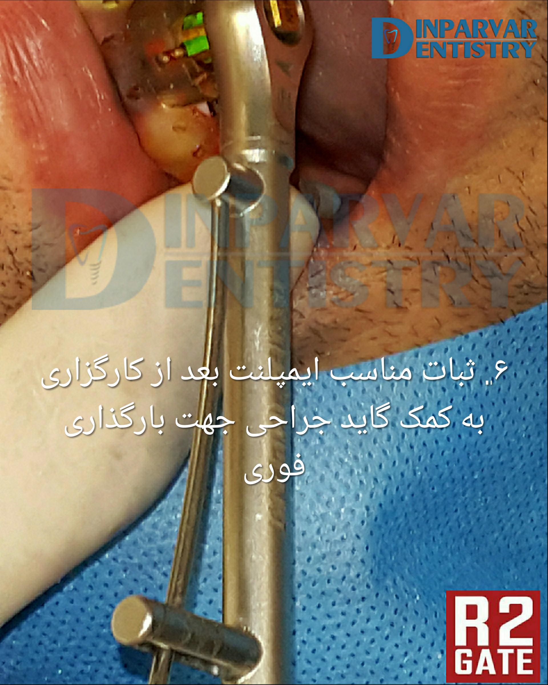 تصویر شش : درمان ایمپلنت یکروزه همزمان با خارج کردن دندان قدامی فک بالا