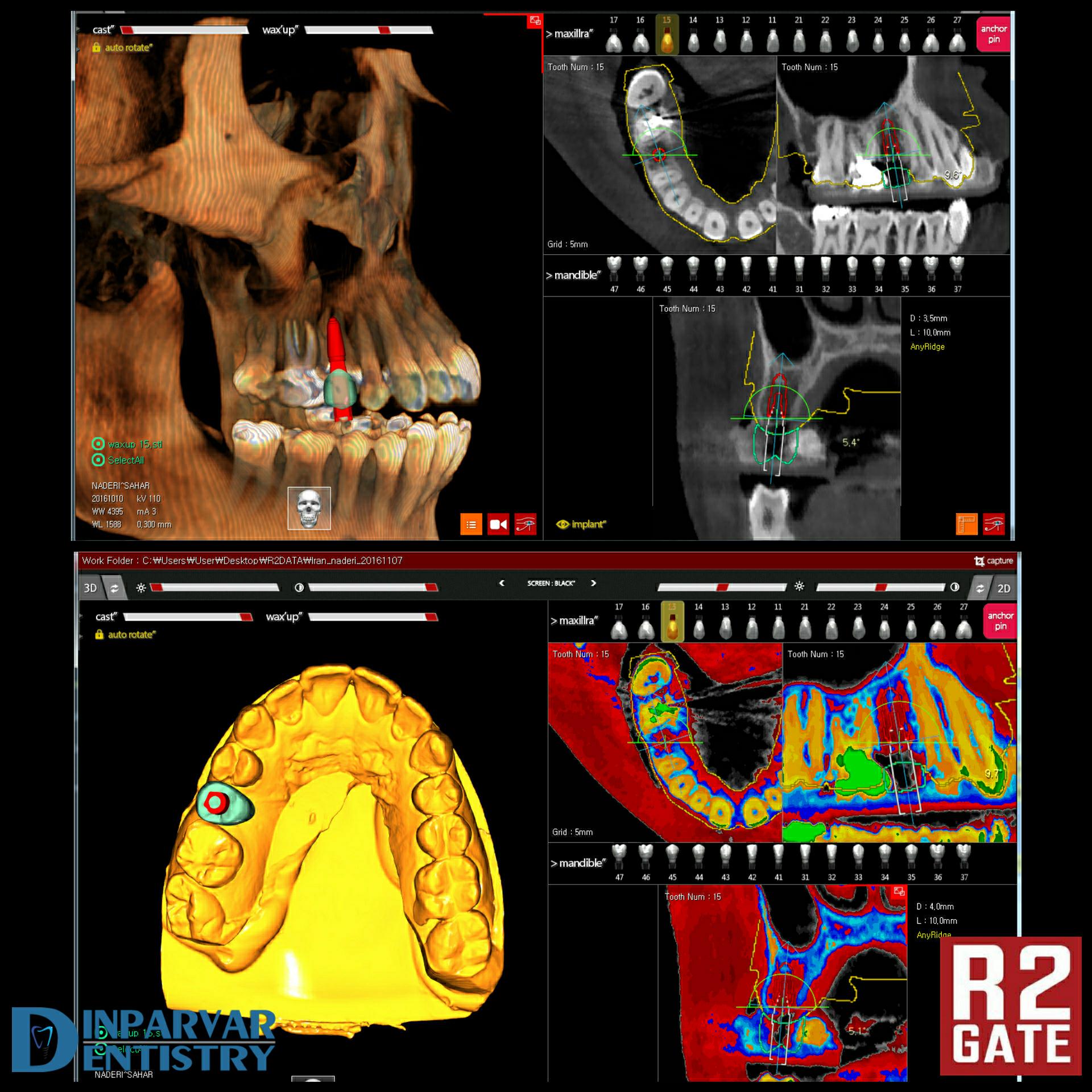 تصویر هفت : مراحل طراحی و کاشت و پروتز نهایی و نتیجه درمان بیمار بعد از دو سال