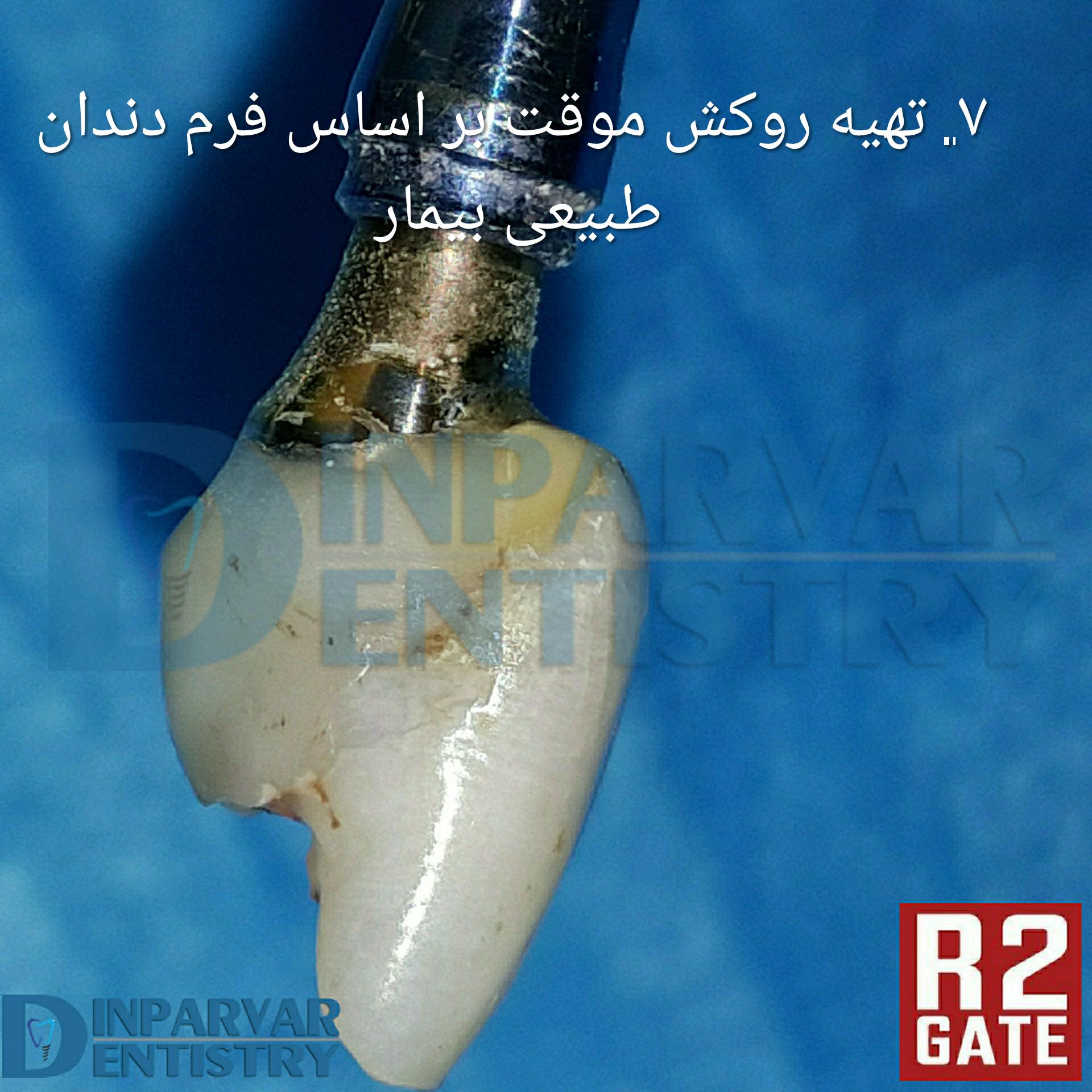 تصویر هفت : درمان ایمپلنت یکروزه همزمان با خارج کردن دندان قدامی فک بالا