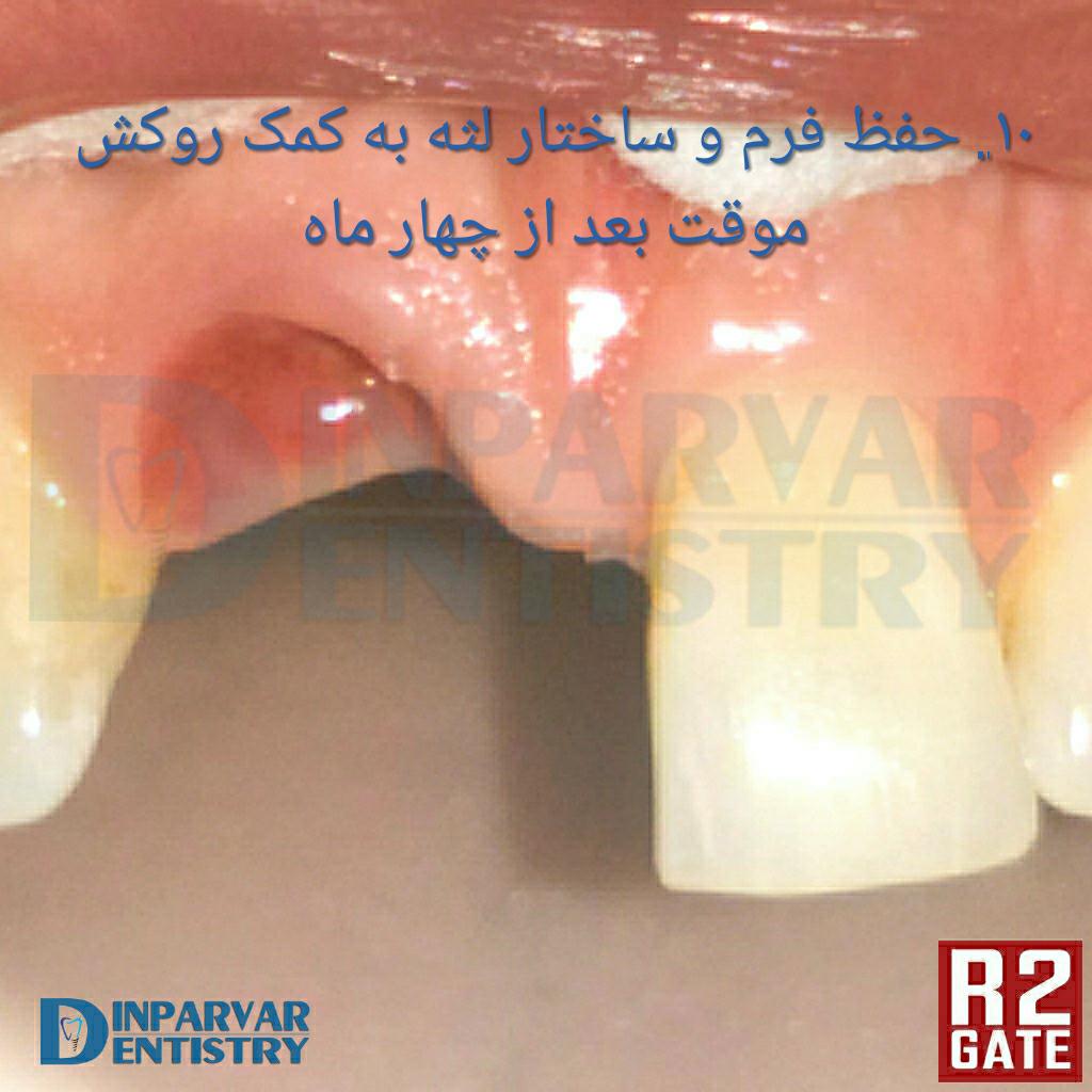 تصویر هشت : درمان ایمپلنت یکروزه همزمان با خارج کردن دندان قدامی فک بالا