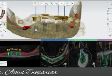 کاشت ایمپلنت با حداقل آسیب و با حفظ بافت های باقی مانده به شیوه دیجیتال انجام شده