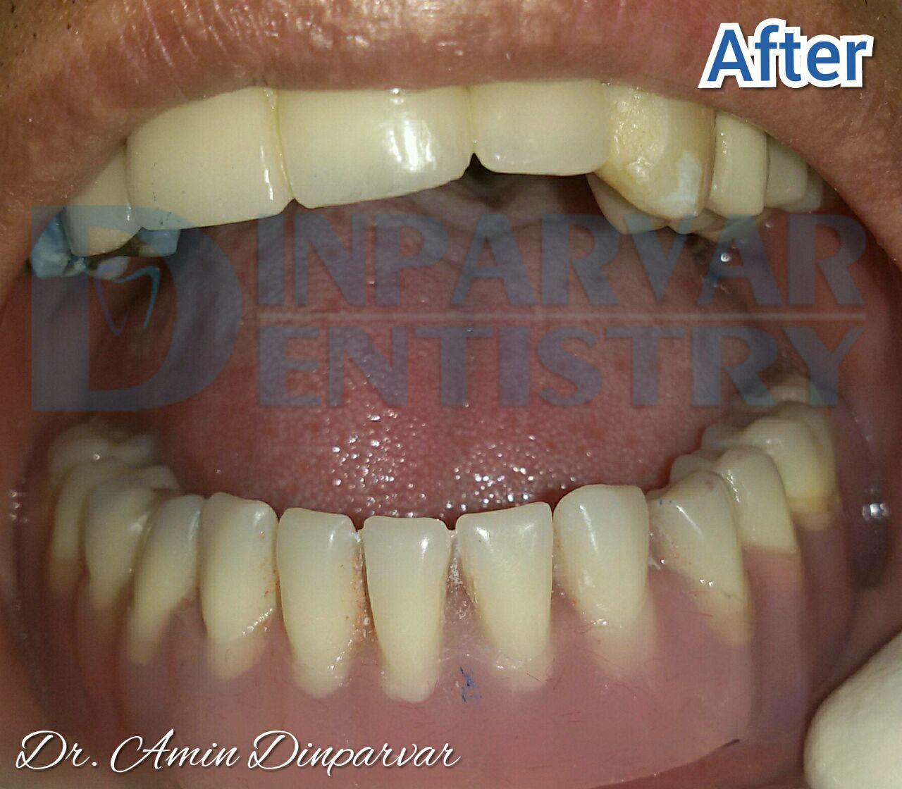 """2 : کاربرد دست دندان های مصنوعی متکی بر ایملپنت یا """"اوردنچر"""""""