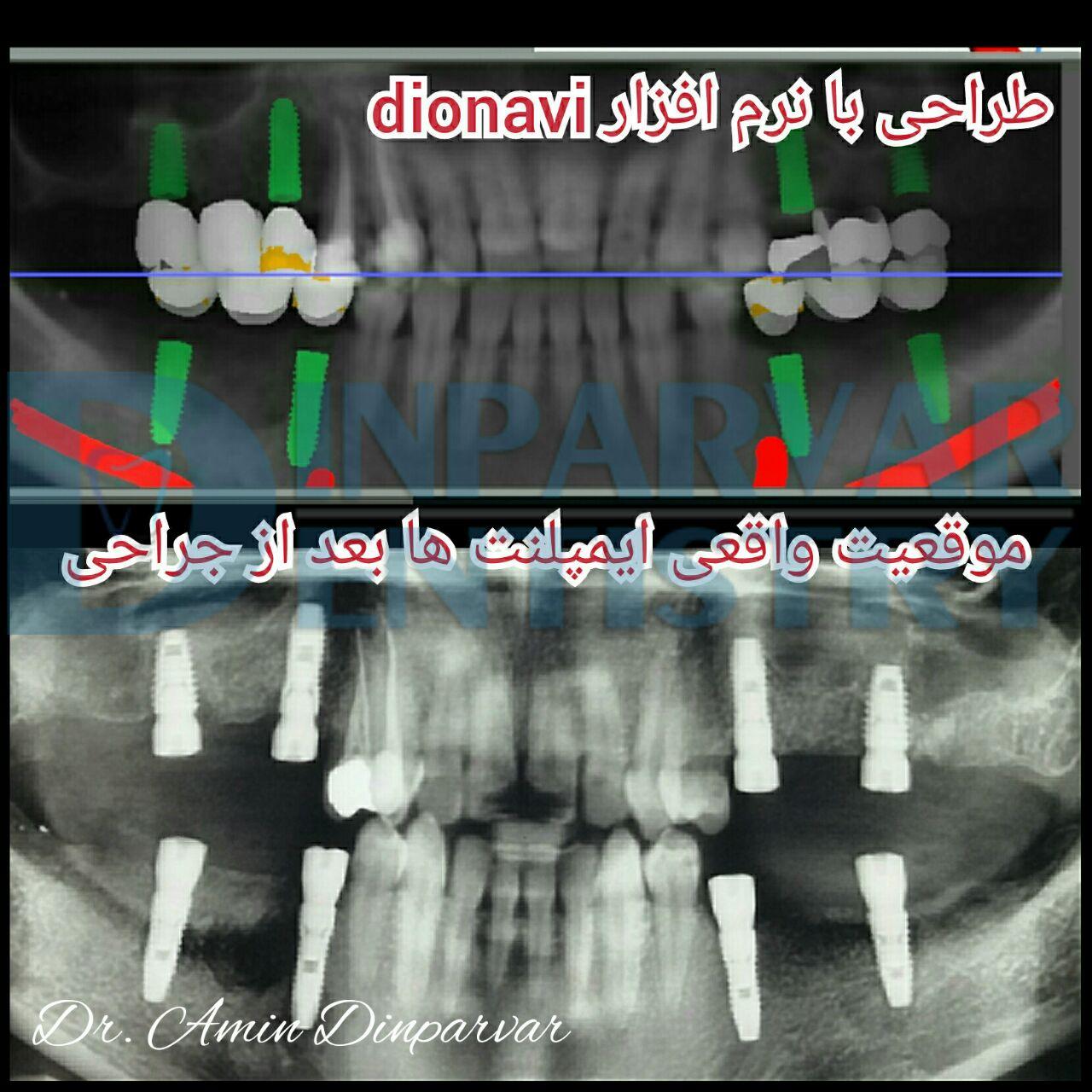3 : درمان فضاهای بی دندانی به کمک ایمپلنت