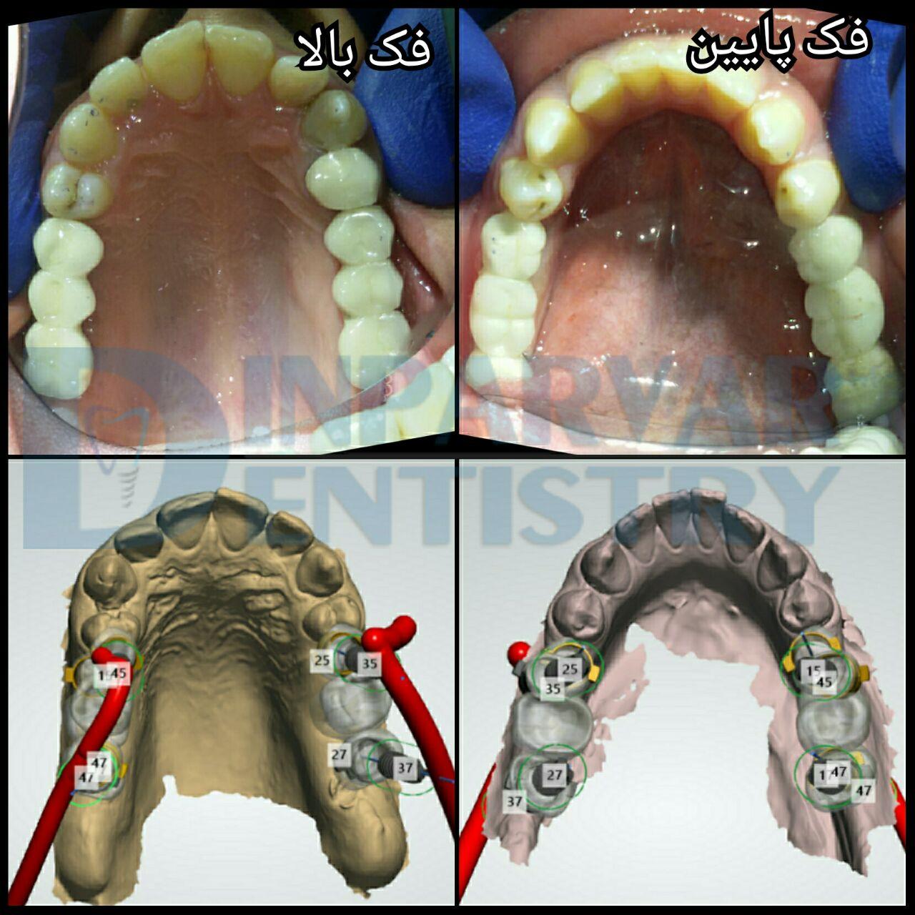 5 : درمان فضاهای بی دندانی به کمک ایمپلنت