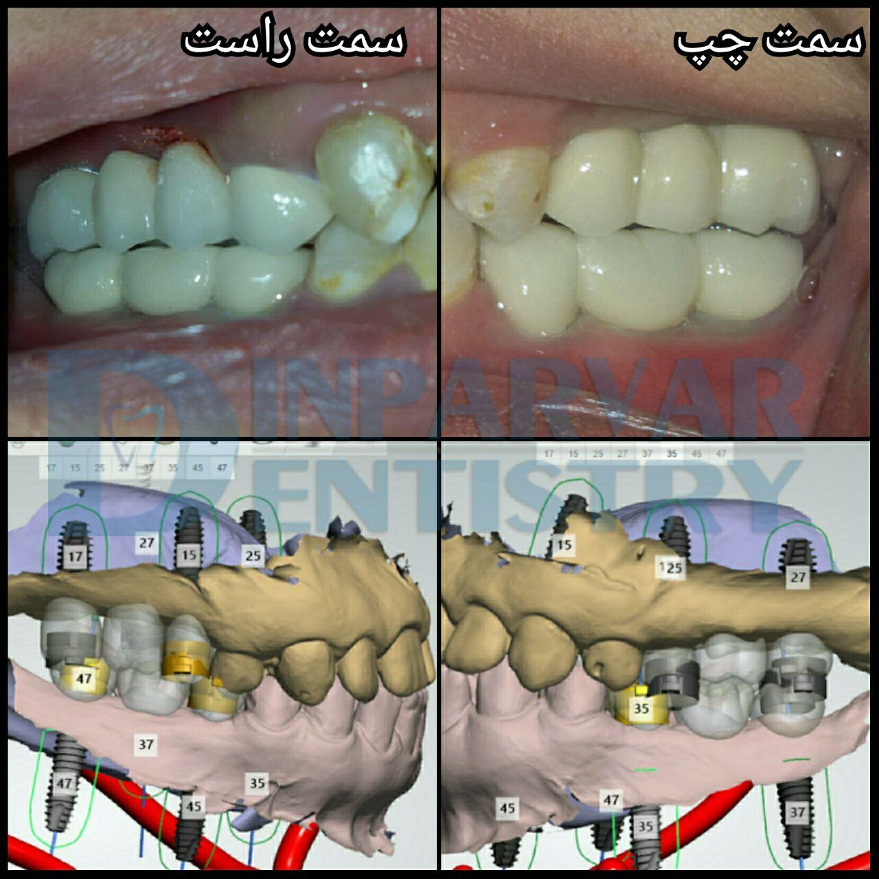 6 : درمان فضاهای بی دندانی به کمک ایمپلنت