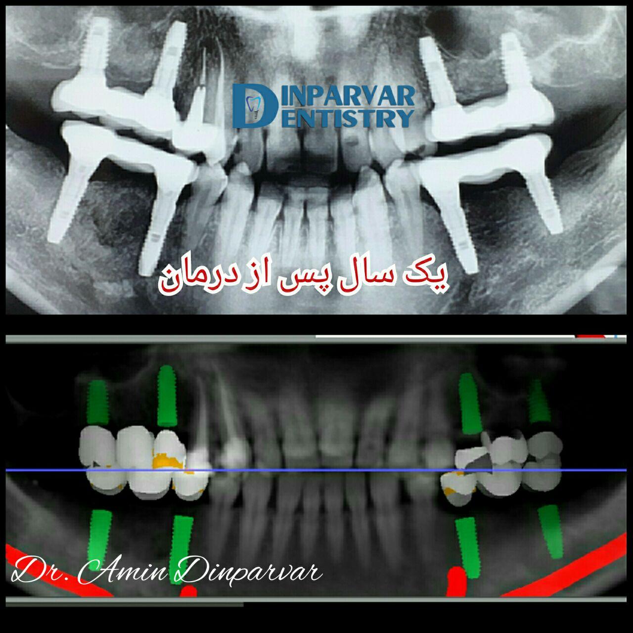 7 : درمان فضاهای بی دندانی به کمک ایمپلنت