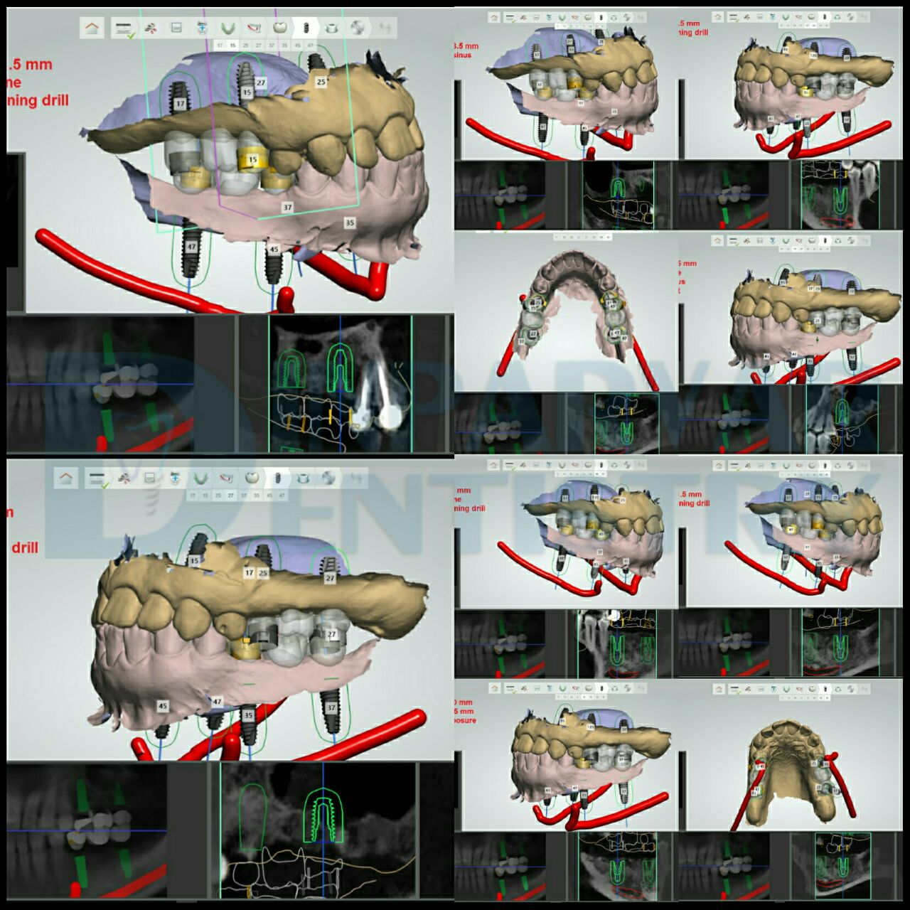 8 : درمان فضاهای بی دندانی به کمک ایمپلنت