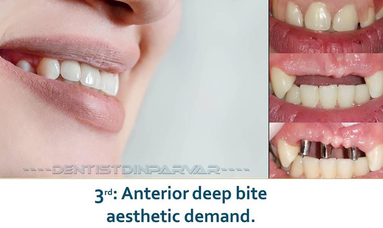 وضعیت قبل از درمان با دندان متحرک نامناسب و نتیجه درمان بر پایه ایمپلنت بعد از سه سال