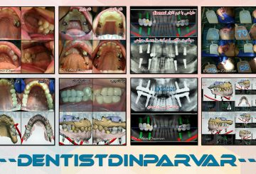 درمان فضاهای بی دندانی به کمک ایمپلنت