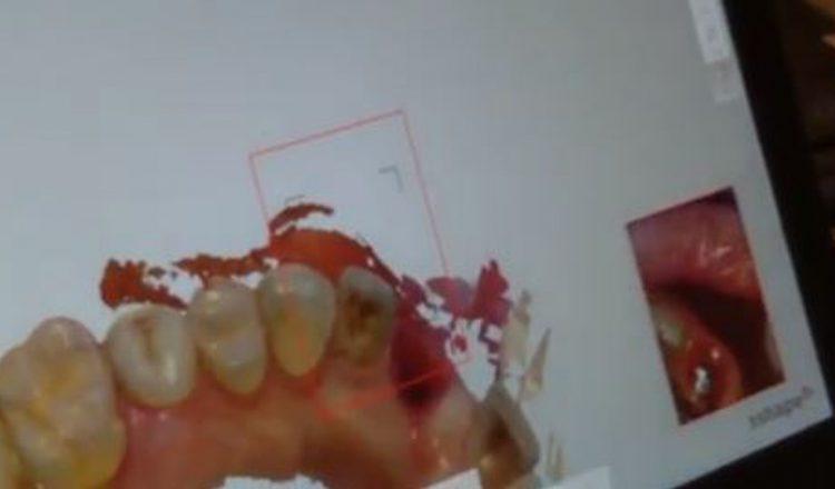 تصویر: ویدئوی انجام اسکن داخلی دانی از ایمپلنت جهت ساخت روکش نهایی
