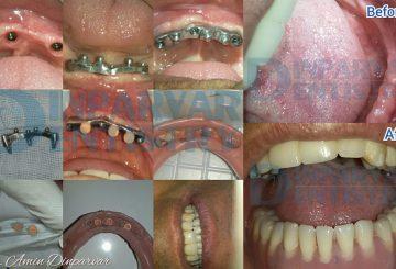 """4 : کاربرد دست دندان های مصنوعی متکی بر ایملپنت یا """"اوردنچر"""""""